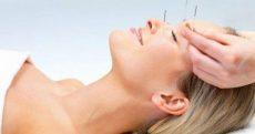 Livre-se das rugas com acupuntura